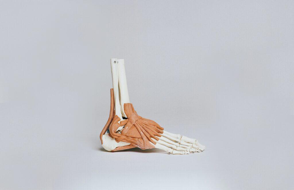 Pijn middenvoetsbeentje bovenkant